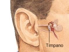 عملية ترقيع طبلة الأذن