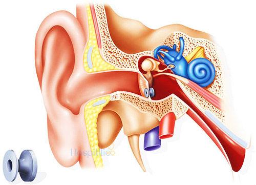 أنابيب تهوية الأذن