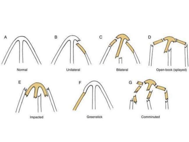 أنواع كسور الأنف