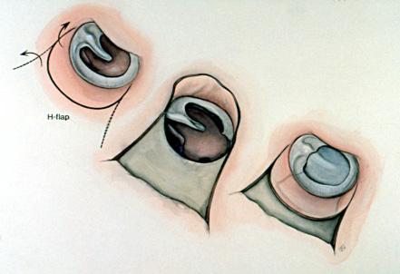 ترقيع طبلة الأذن المثقوبة