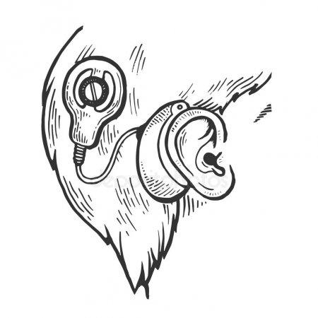 عملية زراعة قوقعة الأذن