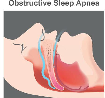 متلازمة الإختناق أثناء النوم