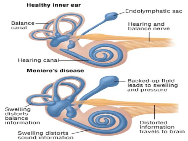 مرض منيير