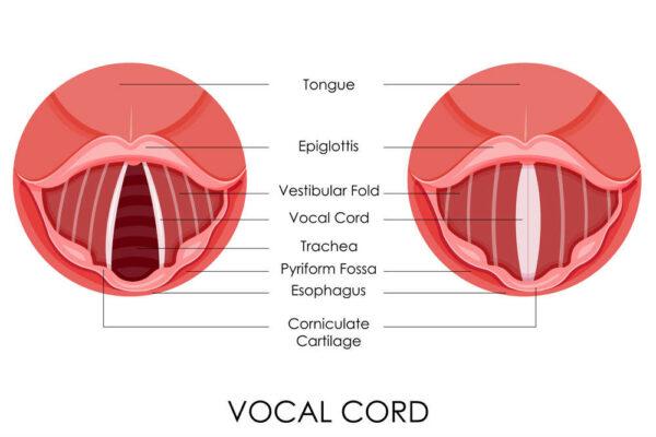 حقن الحبال الصوتية