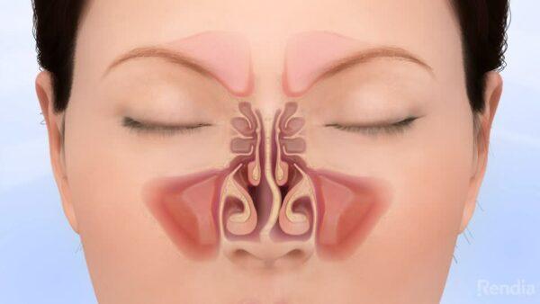 أعراض انحراف الوتيرة الأنفية