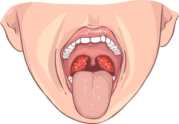 أعراض اللوز