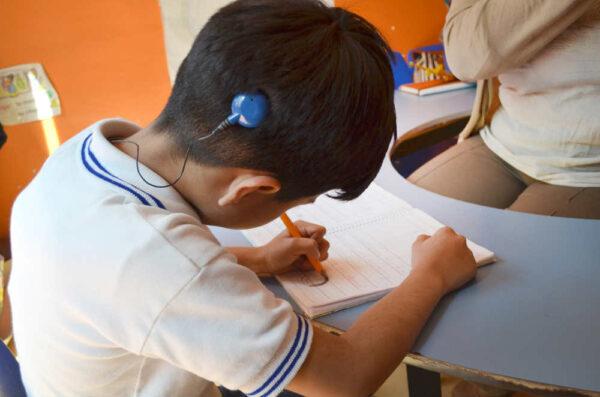 زراعة قوقعة الأذن للأطفال